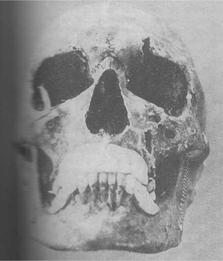 Josef Menegels skull, used to identify his body.